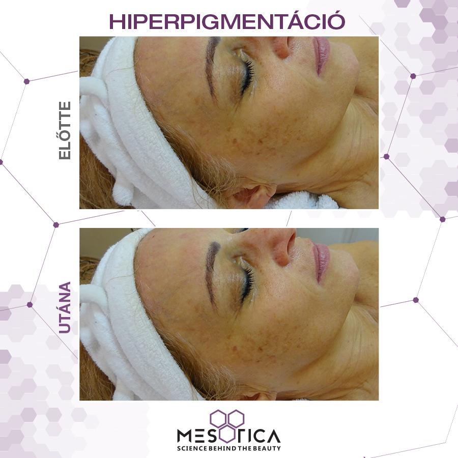 Hiperpigmentáció